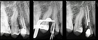 Эндодонтия (лечение корневых каналов)