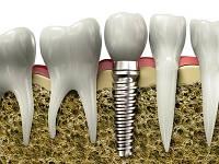 Имплантация и хирургическая стоматология