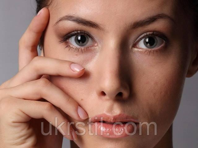 Мешки под глазами, как от них избавиться