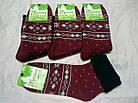 Женские махровые носки зимние с отворотом ТОП-ТАП Житомир Украина 23-25 размер   НЖЗ-01365, фото 4