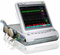 Фетальный монитор G6B+ Heaco с контролем многоплодной беременности