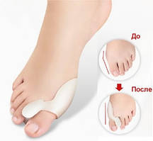 Гелевые накладки Valgus Pro для коррекции и комфорта больших пальцев стопы (Валгус Про)