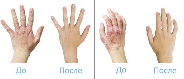 лечения псориаза