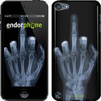 """Чехол на iPod Touch 6 Рука через рентген """"1007c-387"""""""