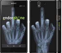 "Чехол на Sony Xperia Z C6602 Рука через рентген ""1007c-40"""