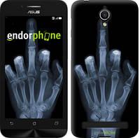 """Чехол на Asus ZenFone Go ZC451TG Рука через рентген """"1007u-276"""""""