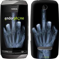 """Чехол на Nokia Asha 305 / 306 Рука через рентген """"1007u-248"""""""