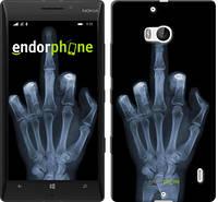 "Чехол на Nokia Lumia 930 Рука через рентген ""1007u-311"""