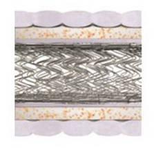Матрас Комфорт плюс хард двусторонний с 2-мя рамами из стали и еврокаркасом, фото 2