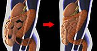 Токсины в жировых клетках - причина опухлости живота. Вот как очистить от них организм