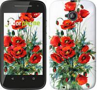 """Чехол на Motorola Moto E2 Маки """"523u-377"""""""