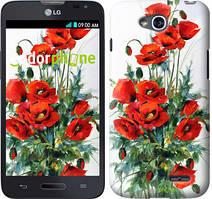 """Чехол на LG L80 Dual D380 Маки """"523u-332"""""""