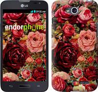 """Чехол на LG L80 Dual D380 Цветущие розы """"2701u-332"""""""