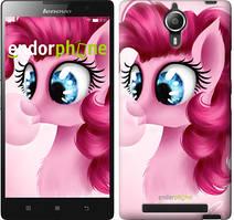 "Чохол на Lenovo Vibe C2 Pinkie Pie v3 ""3549c-397"""
