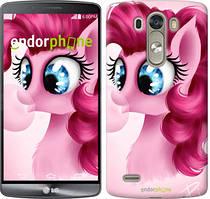 "Чохол на LG G3 D855 Pinkie Pie v3 ""3549c-47"""