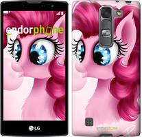 "Чохол на LG G4s H734 Pinkie Pie v3 ""3549c-389"""