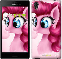 """Чохол на Sony Xperia C4 Pinkie Pie v3 """"3549u-295"""""""