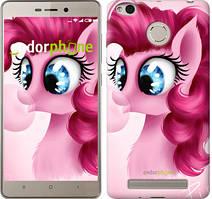 "Чехол на Xiaomi Redmi 3 Pro Pinkie Pie v3 ""3549c-341"""