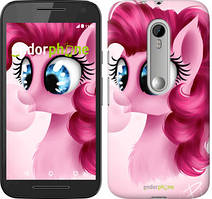 "Чохол на Motorola Moto G3 Pinkie Pie v3 ""3549u-318"""