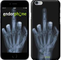 """Чохол на iPhone 6 Рука через рентген """"1007c-45"""""""