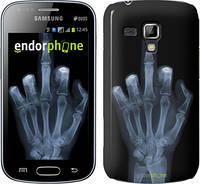 "Чехол на Samsung Galaxy S Duos s7562 Рука через рентген ""1007c-84"""