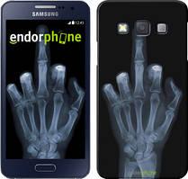 """Чохол на Samsung Galaxy A3 A300H Рука через рентген """"1007c-72"""""""