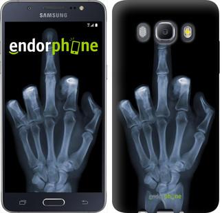 "Чехол на Samsung Galaxy J5 (2016) J510H Рука через рентген ""1007c-264"""