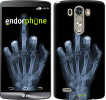 """Чохол на LG G3 D855 Рука через рентген """"1007c-47"""""""