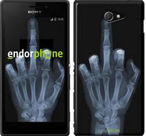 """Чохол на Sony Xperia M2 D2305 Рука через рентген """"1007c-60"""""""
