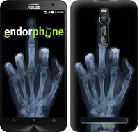 """Чехол на Asus Zenfone 2 ZE551ML Рука через рентген """"1007c-122"""""""