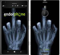 "Чехол на Nokia Lumia 1520 Рука через рентген ""1007u-314"""