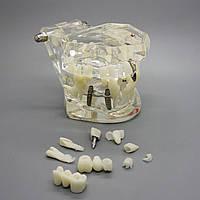 Модели верхней и нижней челюстей с патологией, фото 1