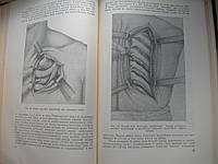 """А.Вишневский """"Местное обезболивание по методу ползучего инфильтрата"""". 1956 год"""