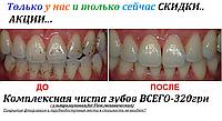 Комплексная чиста зубов в Киеве,недорого