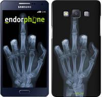 "Чехол на Samsung Galaxy A5 A500H Рука через рентген ""1007c-73"""