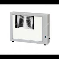 Негатоскоп медицинский НТ-86М, Негатоскоп для рентгеновских пленок.