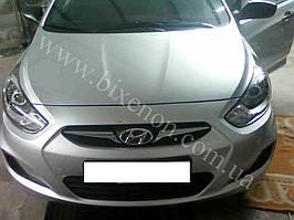 Установка билинз G5 с глазами на Hyundai Accent 5