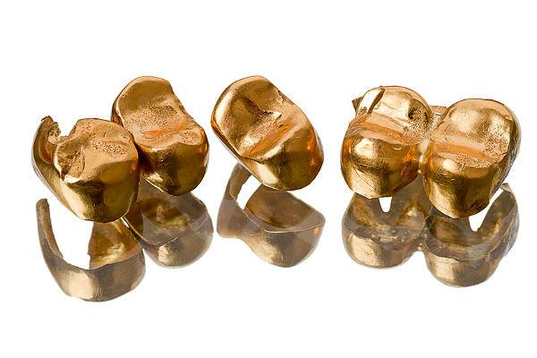 Стоматологическое золото  (залог-скупка)