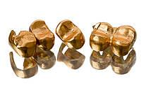 Ваш ломбард (залог-скупка стоматологического золота)