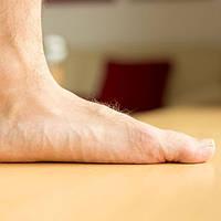 К чему может привести плоскостопие?