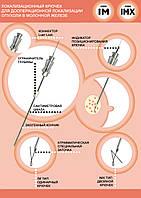 Локализационный крючок для дооперационной локализации опухоли в молочной железе