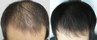 Трихология. Лечение волос