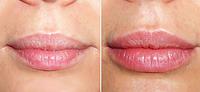 Увеличение губ | Умеренный объем губ Juvederm 0,55 мл (Франция)