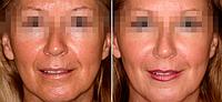 Биоревитализация препаратом Aquashine Classic | Обкалывание лица и шеи