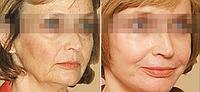 Биоревитализация препаратом Aquashine BR | Обкалывание лица и шеи