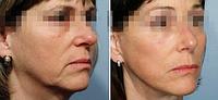 Биоревитализация препаратом Aquashine BTX | Обкалывание лица и шеи