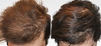 Плазмолифтинг головы | Волосяная часть головы