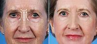 Устранение морщин межбровья | Ботулинотерапия | Омоложение лица