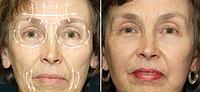 Устранение морщин | Ботулинотерапия | Омоложение лица