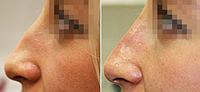 Коррекция ската носа | Ботулинотерапия | Скатов спинки носа